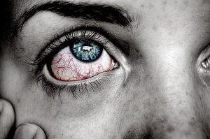 充血した右目のアップ。